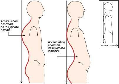 Le traitement du cou à linsufflation